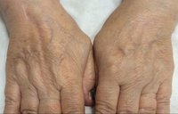 Hand-Rejuvenation-Treatment-1_before.jpg