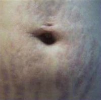 Stretch-Marks-1_after.jpg
