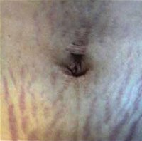 Stretch-Marks-1_before.jpg