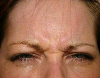botox-treatments-2_before.jpg