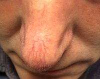laser-thread-vein-removal_2_before.jpg