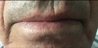 laser-thread-vein-removal_3_after.jpg