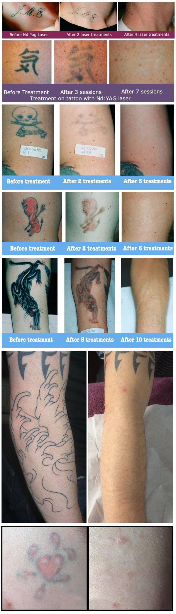 laser_tattoo_removal_before_after.jpg