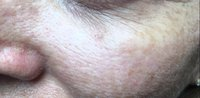 pigmentation-treatment-2_after.jpg